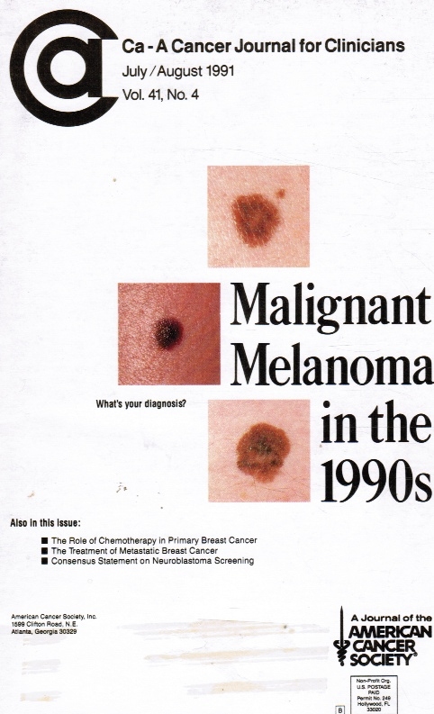 Image for Ca-A Cancer Journal for Clinicians : Vol 41, No 4 July/Aug 1991 Malignant Melonoma in the 1990's